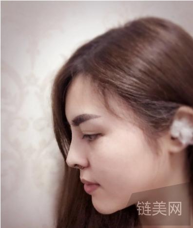 耳软骨垫鼻尖术后30天